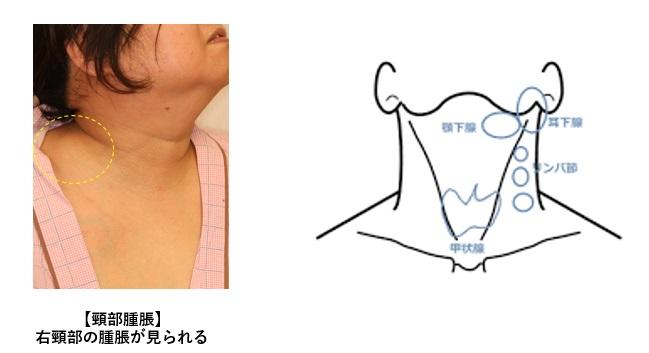 腫れ 顎 リンパ 肩こりがリンパの腫れの原因に!リンパの腫れには安静とマッサージを|ヘルモア